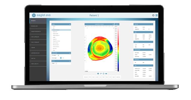 Eye Surface Profiler Online Demonstration